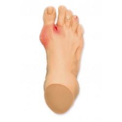 Běžné problémy s nohou