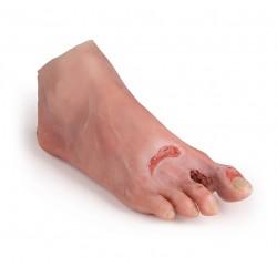 Noha se syndromem diabetické nohy pokročilé stádium