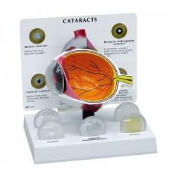Poloviční model oka s šedým zákalem