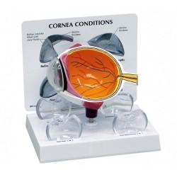 Poloviční model oka s onemocněním rohovky