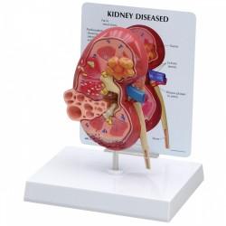 Model nemocné ledviny