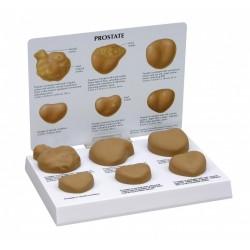 Model onemocnění prostaty