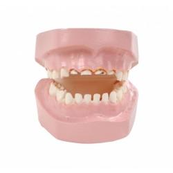 Zubní kaz dítěte způsobený kojící lahví