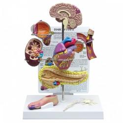 Model diabetu typu II