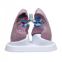 Patologický model plic