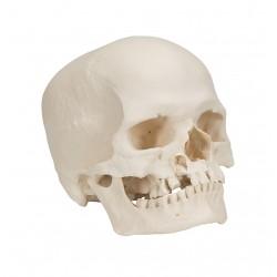 Lebka mikrocefalická