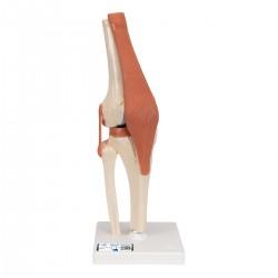 Model luxusního kolenního kloubu