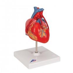 Model srdce s přemostěním (bypassem) - 2 části