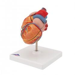Model srdce s hypertrofií levé komory - 2 části