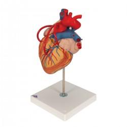 Model srdce s přemostěním (bypassem) - 4 části