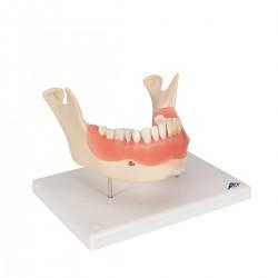Model zubního onemocnění 2 krát zvětšeno - 21 částí