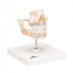 Model mléčného chrupu dítěte