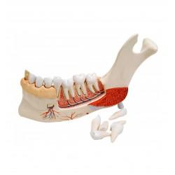 Model levé poloviny dolní čelisti s 8 nemocnými zuby - 19 částí