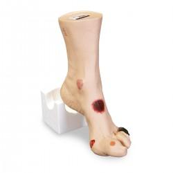Model nemocné nohy