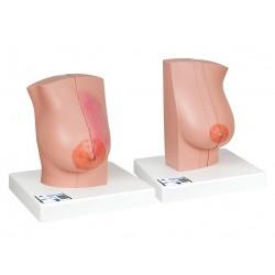 Model ženského prsa se zdravou a nemocnou tkání