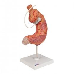Model žaludku s bandáží - 2 části