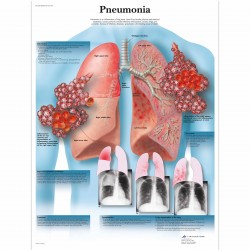 Pneumonie - 50 x 67 cm plakát anatomie / papír bez lišt