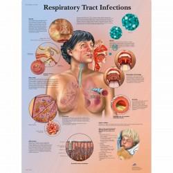 Infekce dýchacího systému - 50 x 67 cm plakát anatomie / papír bez lišt