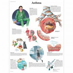 Astma - 50 x 67 cm plakát anatomie / papír bez lišt