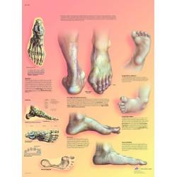 Deformace nohy - 50 x 67 cm plakát anatomie / papír bez lišt