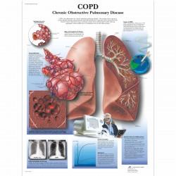 Chronická obstrukční plicní nemoc - 50 x 67 cm plakát anatomie / papír bez lišt